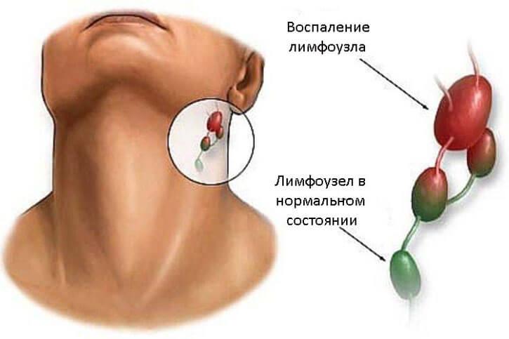 Боль в шее с правой стороны